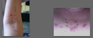 Yeah, I seriously just put pictures of our festering wounds on our blog! Gross!